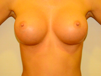 Case 8: Muscle splitting biplane breast augmentation, Mentor® anatomical implants 290 cc