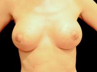 Caz 11: Mamopexie cu augmentare mamara, implanturi anatomice Mentor® 330 si 380 cm³