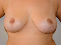 Case 10: Breast lift