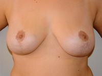Caz 10: Mamopexia