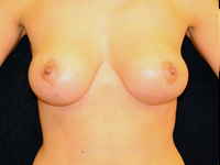 Case 12: Augmentation mastopexy, Mentor® round implants 185 cc