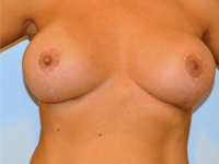 Case 13: BREAST LIFT