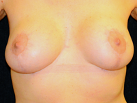 Case 14: Augmentation mastopexy, Mentor® round implants 250 cc (patient after massive weight loss 40 kg)