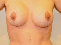 Case 7: Augmentation mastopexy, Mentor® round implants 250 cc (patient after massive weight loss 50 kg)