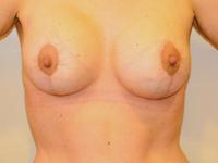 Caz 7: Mamopexie cu augmentare mamara, implanturi rotunde Mentor® 250 cm³ (pacienta dupa scadere masiva in greutate aprox 50 kg dupa chirurgie bariatrica)