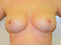 Case 9: Augmentation mastopexy, Mentor® anatomical implants 225 cc