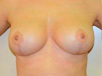 Caz 9: Mamopexie cu augmentare mamara, implanturi anatomice Mentor® 225 cm³