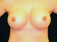 Case 101: Muscle splitting biplane breast augmentation with internal mastopexy, Mentor® anatomical implants 380 cc