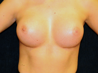 Case 104: Subfascial breast augmentation, Mentor® anatomical implants 380 cc