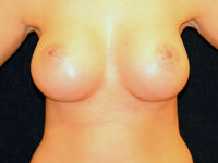 Case 108: Muscle splitting biplane breast augmentation with internal mastopexy, Mentor® anatomical implants 430 cc