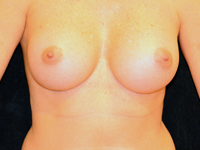 Case 110: Muscle splitting biplane breast augmentation, Mentor® round implants 215 cc