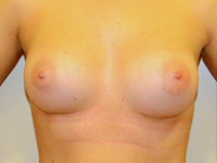 Case 73: Muscle splitting biplane breast augmentation, Mentor® anatomical implants 290 cc
