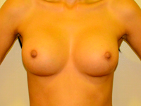 Case 74: Muscle splitting biplane breast augmentation with internal mastopexy, Mentor® anatomical implants 300 cc