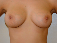 Case 80: Muscle splitting biplane breast augmentation with internal mastopexy, Mentor® anatomical implants 345 cc