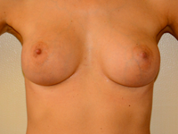 Case 83: Muscle splitting biplane breast augmentation with internal mastopexy, Mentor® anatomical implants 330 cc