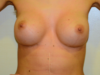 Case 86: Muscle splitting biplane breast augmentation with internal mastopexy, Mentor® anatomical implants 330 cc