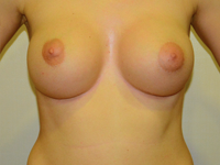 Case 87: Muscle splitting biplane breast augmentation with internal mastopexy, Mentor® anatomical implants 380 cc