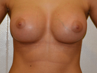 Case 88: Muscle splitting biplane breast augmentation with internal mastopexy, Mentor® anatomical implants 330 cc