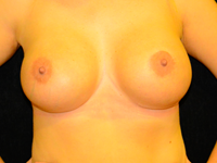 Case 89: Muscle splitting biplane breast augmentation with internal mastopexy, Mentor® anatomical implants 485 cc
