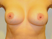 Case 92: Muscle splitting biplane breast augmentation with internal mastopexy, Mentor® anatomical implants 330 cc