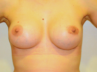 Case 93: Muscle splitting biplane breast augmentation with internal mastopexy, Mentor® anatomical implants 330 cc