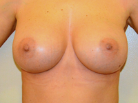Case 94: Muscle splitting biplane breast augmentation with internal mastopexy, Mentor® anatomical implants 380 cc