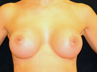 Case 99: Muscle splitting biplane breast augmentation, Mentor® anatomical implants 330 cc