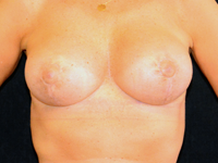 Case 15: Preoperative: Muscle splitting biplane breast augmentation, Mentor® anatomical implants 390 cc (8 years postoperative result) / Postoperative: Augmentation mastopexy (muscle splitting biplane), Mentor® round implants 340 cc
