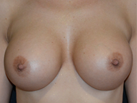 Case 120 - Muscle splitting biplane breast augmentation with internal mastopexy, Mentor® anatomical implants 430 cc and 440 cc