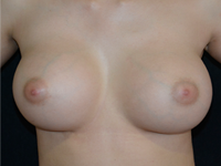 Case 115 - Subfascial breast augmentation, Mentor® round implants 425 cc
