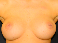 Case 116 - Muscle splitting biplane breast augmentation, Mentor® anatomical implants 330 cc