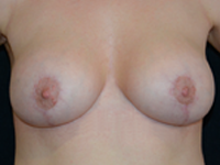 Case 16 - Augmentation mastopexy, Mentor® round implants 255 cc