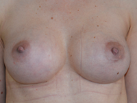 Case 123 - Muscle splitting biplane breast augmentation with internal mastopexy, Mentor® anatomical implants 380 cc and 305 cc