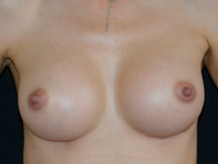 Case 124 - Muscle splitting biplane breast augmentation, Mentor® anatomical implants 380 cc