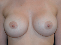 Case 126 - Muscle splitting breast augmentation with internal mastopexy , Mentor anatomical implants  380 cc