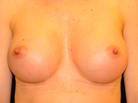 Case 112: Muscle splitting biplane breast augmentation, Mentor® anatomical implants 380 cc