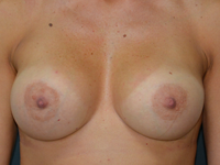 Case 125 - Muscle splitting breast augmentation, Mentor anatomical implants 330 cc and 380 cc