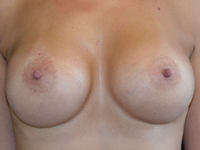 Case 127 - Muscle splitting breast augmentation with internal mastopexy , Mentor anatomical implants  485 cc